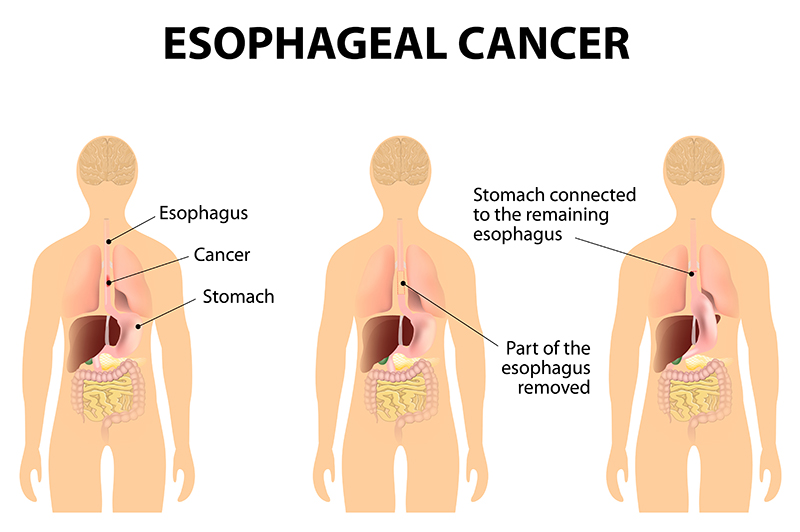 esophageal cancer treatment in bangalore