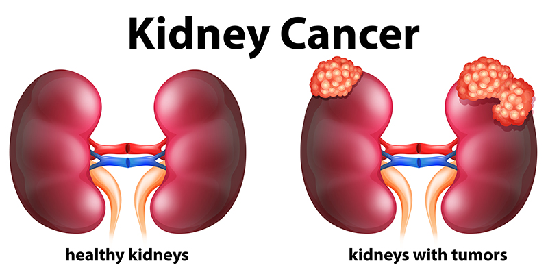 Kidney Cancer Treatment in Bangalore