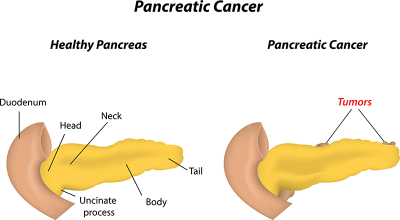 pancreatic tumor