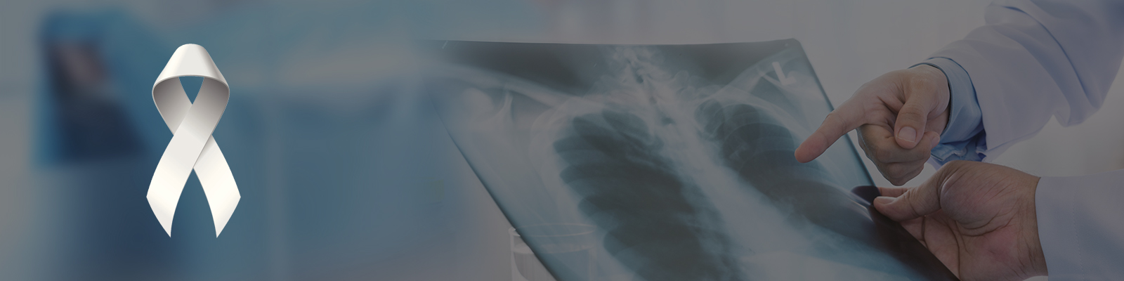 lung cancer treatment in Bangalore