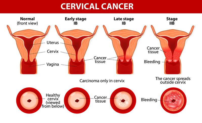 Cervical Cancer Treatment & Surgery Bangalore