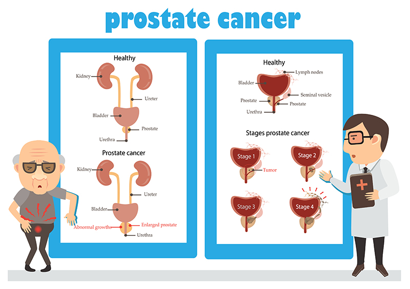 Prostatectomy-Treatment-Bangalore-India