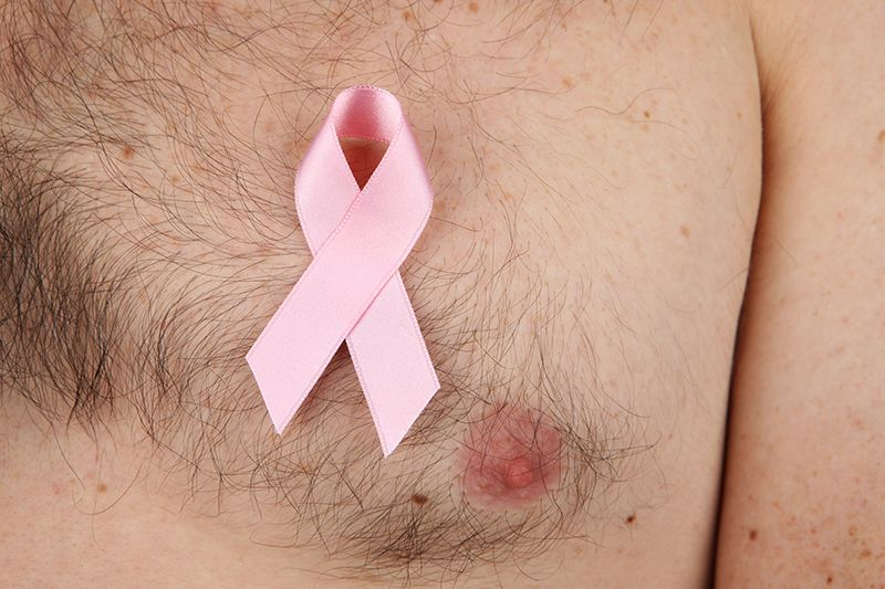 Male-breast-cancer-doctor-Bangalore