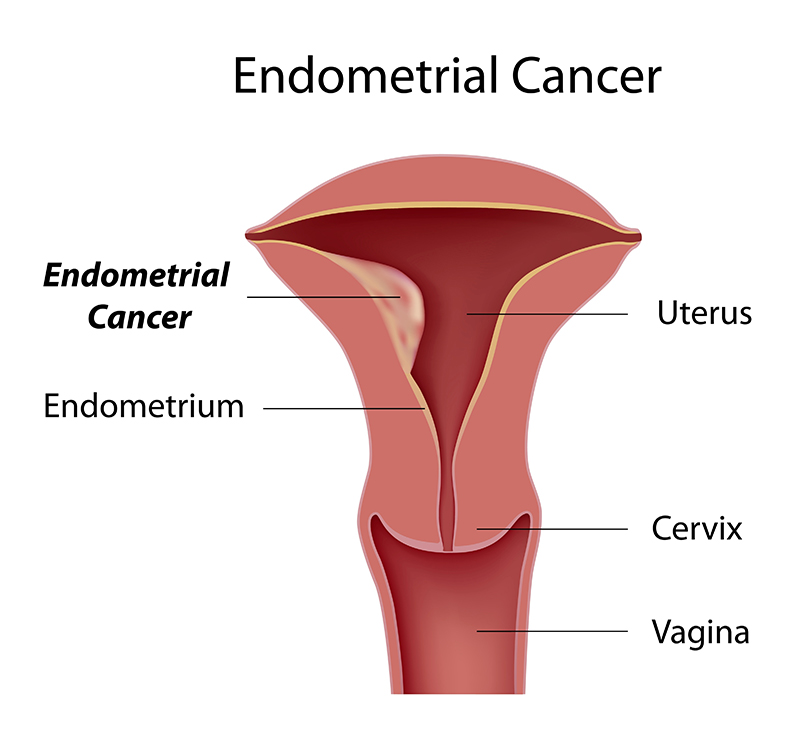 Endometrial Cancer Treatment & Surgery Bangalore, India