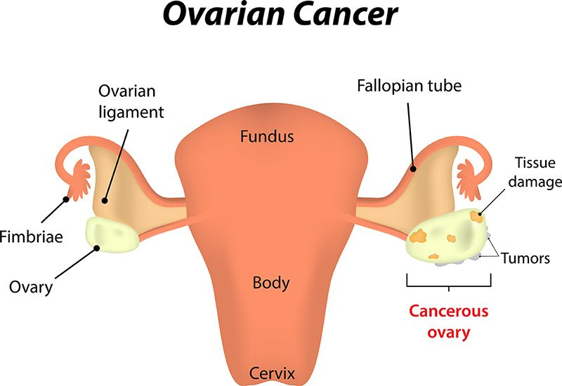 Gynecological Cancer Treatment India