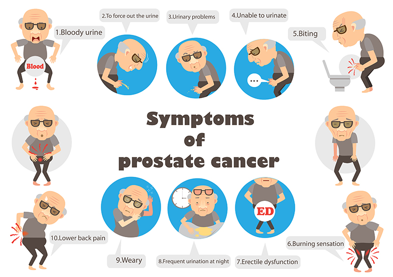 Prostate Cancer Treatment Bangalore