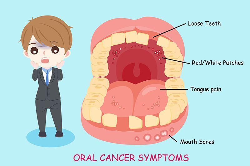 Mouth Cancer Treatment India